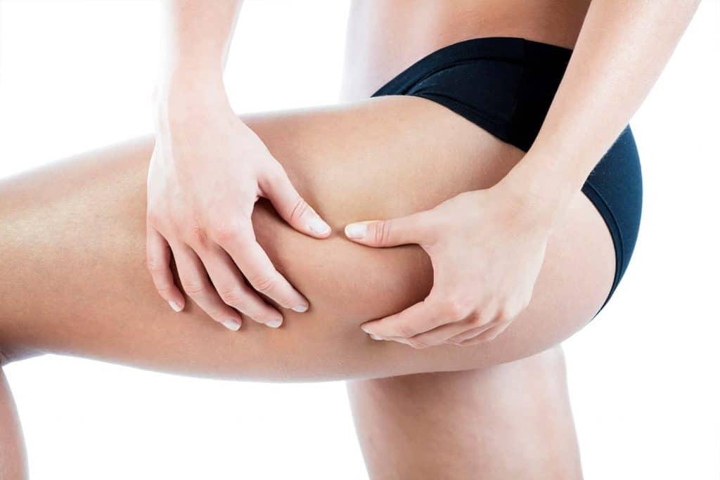 Eliminar la celulitis y la grasa localizada en el abdomen