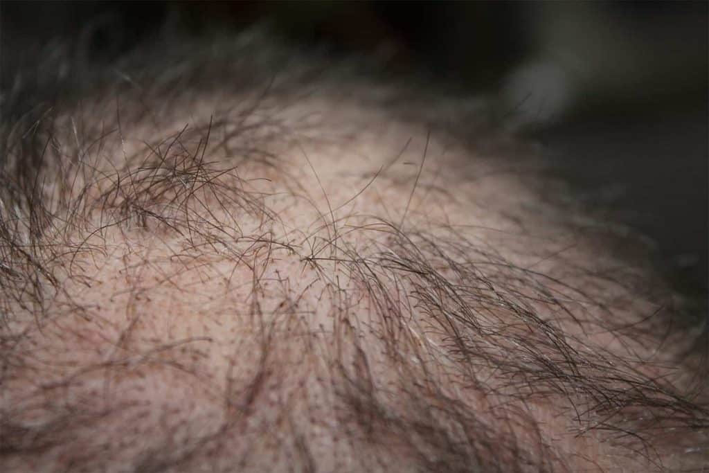 Tratamientos para la perdida de pelo y calvicie